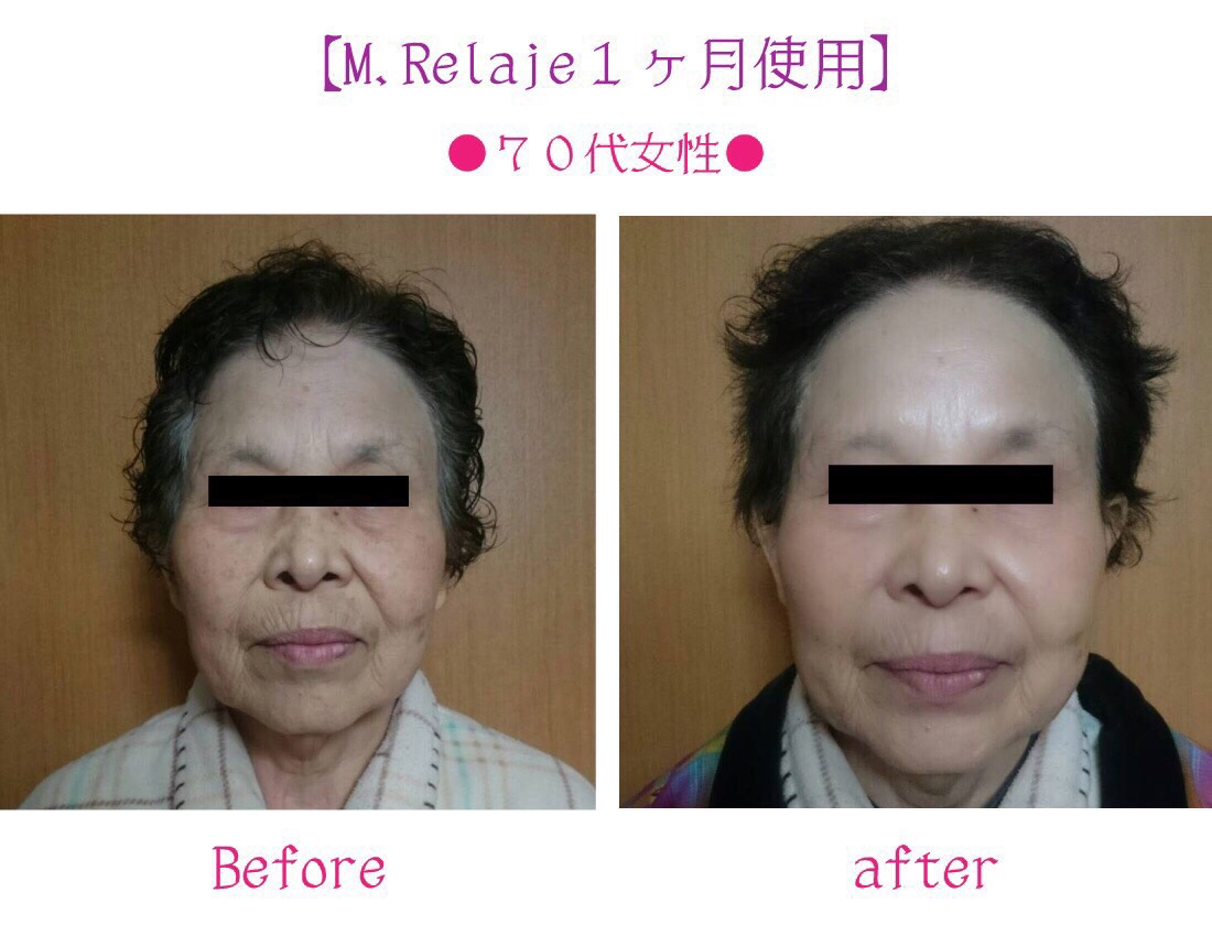 relage mask before after